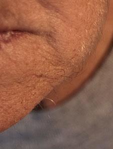 Hairs on My Chin